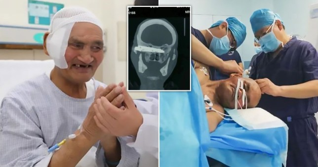 Rusty KNIFE Embedded in Man's Head Removed After 26 Years