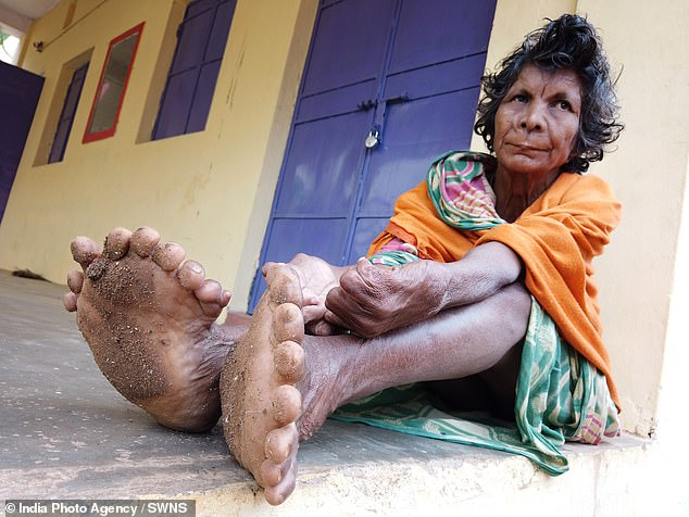 Woman from INDIA Branded as Witch Sets World Record