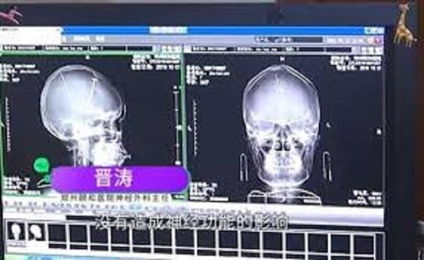 Woman Gets CT Scan After Minor Car Accident, Finds NEEDLES in Her Brain Instead