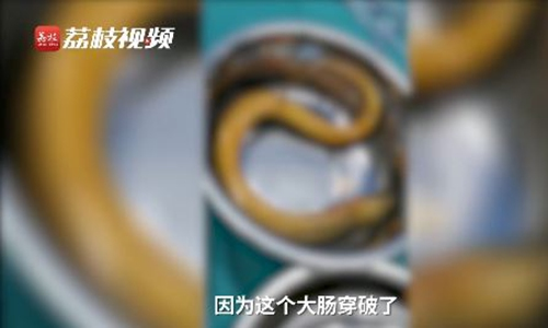 Man Inserts Eel into His Rectum to Relieve Constipation